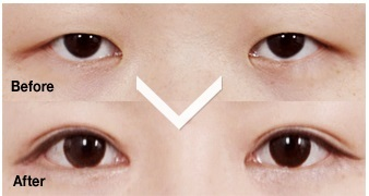 韓国美容外科,目頭形成,目尻形成,たれ目形成