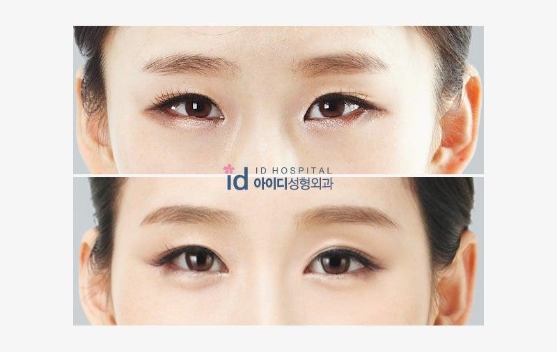 韓国美容外科,目頭切開,目尻切開,垂れ目切開