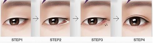 目形成,韓国美容整形,たれ目形成,目尻形成