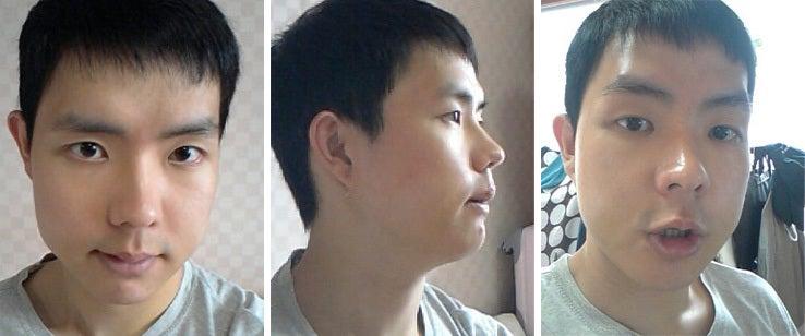 韓国美容外科、男整形、しゃくれ顎、両顎手術