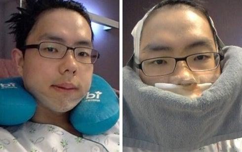 韓国美容整形、男整形、両顎製形、しゃくれ顎