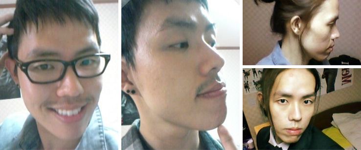 韓国美容外科、男整形、両顎手術、しゃくれ顎