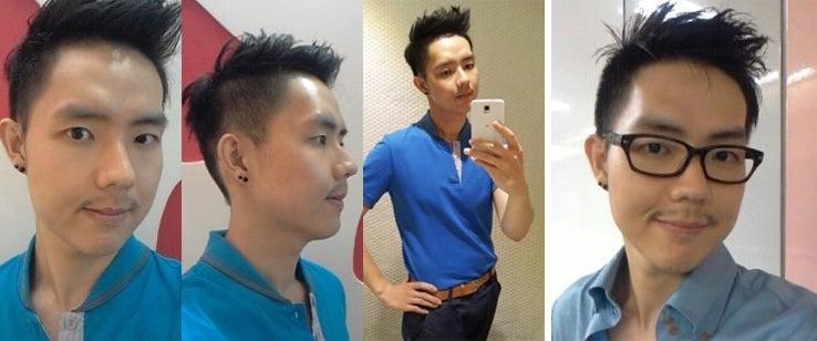 韓国美容外科、男整形、両顎製形、しゃくれ顎