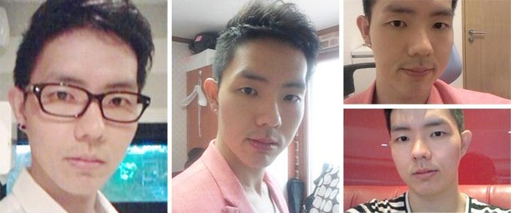 韓国美容整形、男整形、両顎手術、ID美容外科