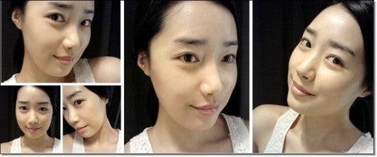 しゃくれ顎、両顎手術、中国LET美人、不正咬合