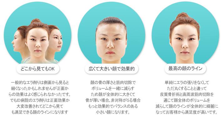 エラ削り、美容整形、小顔、輪郭