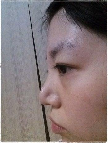 鼻整形、鼻中隔、韓国美容整形