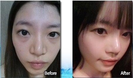 脂肪再配置、鼻整形、くすみ