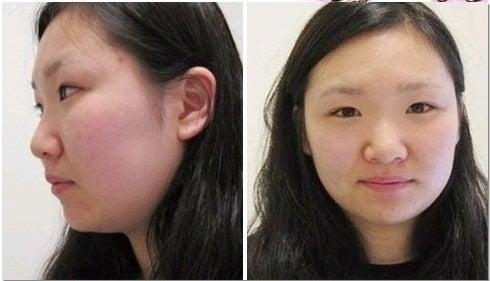 韓国美容整形、目整形、鼻整形
