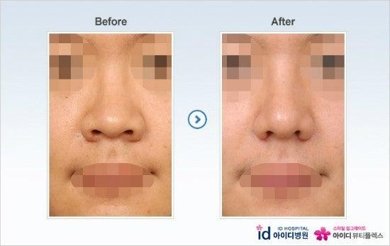 鼻先整形、鼻整形、ダンゴ鼻、鼻尖形成