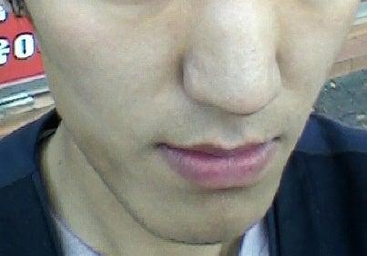 ID美容外科、しゃくれ顎、両顎手術、面長