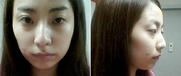 わし鼻、鼻整形、ID美容外科、切開法
