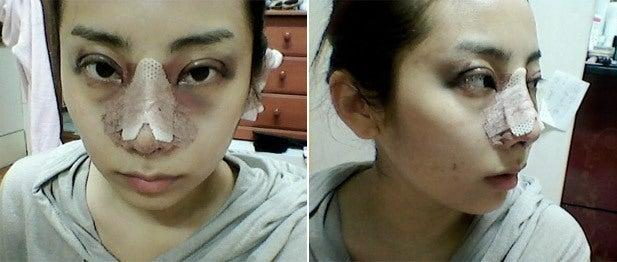 わし鼻、目整形、切開法、目再手術