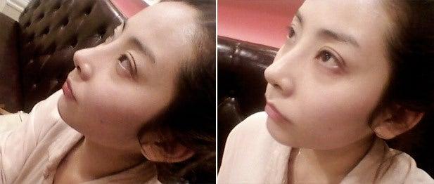 ID美容外科、切開法、目再手術、わし鼻
