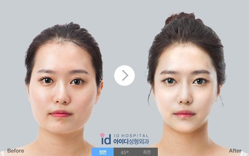 韓国美容整形、ID美容外科、Vライン手術