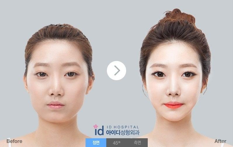 Eライン、ID美容外科、Vライン手術