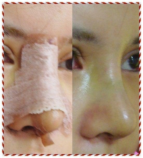 鼻翼縮小、鼻整形、ダンゴ鼻、切開法
