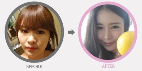 鼻翼縮小、ID美容整形、韓国整形