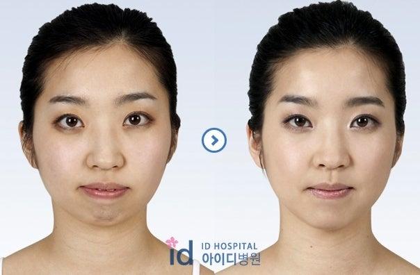 顎なし、Vライン手術、輪郭整形