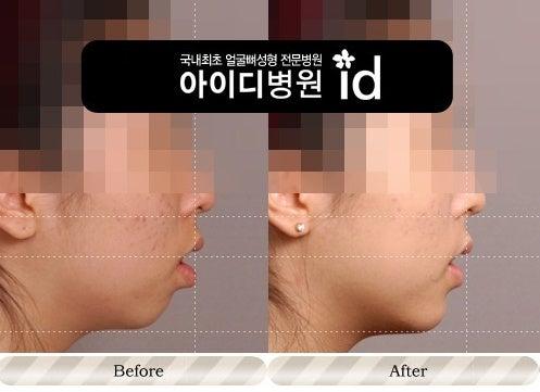 Eライン、ID美容外科、顎なし