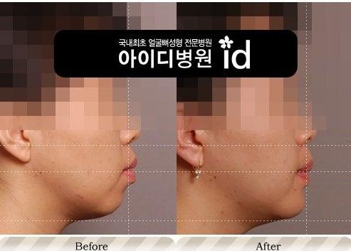 ID美容外科、Eライン、顎なし