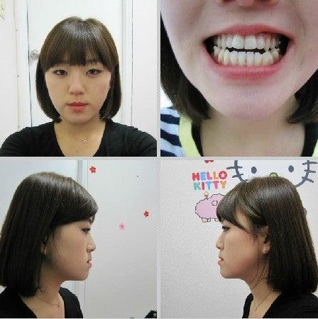 Eライン、しゃくれ顎、両顎手術、ID美容外科