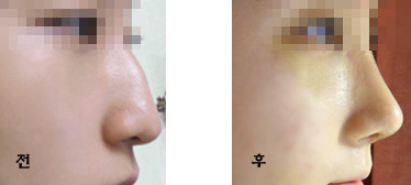 わし鼻、わし鼻修正、鼻整形、ID美容外科