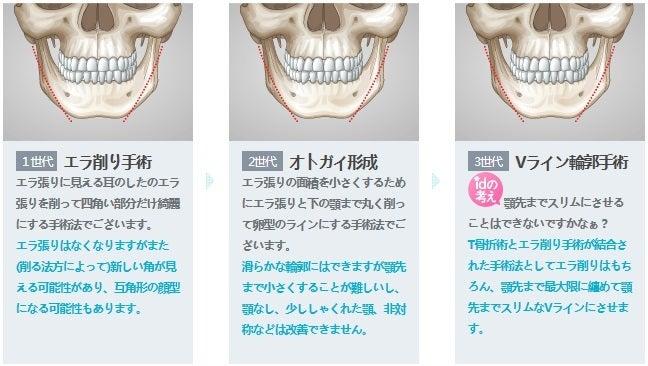 Vライン、ID美容外科、小顔