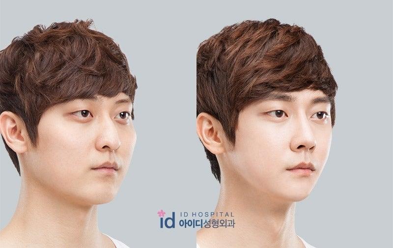 ID美容外科、鼻整形、鼻筋、鼻先