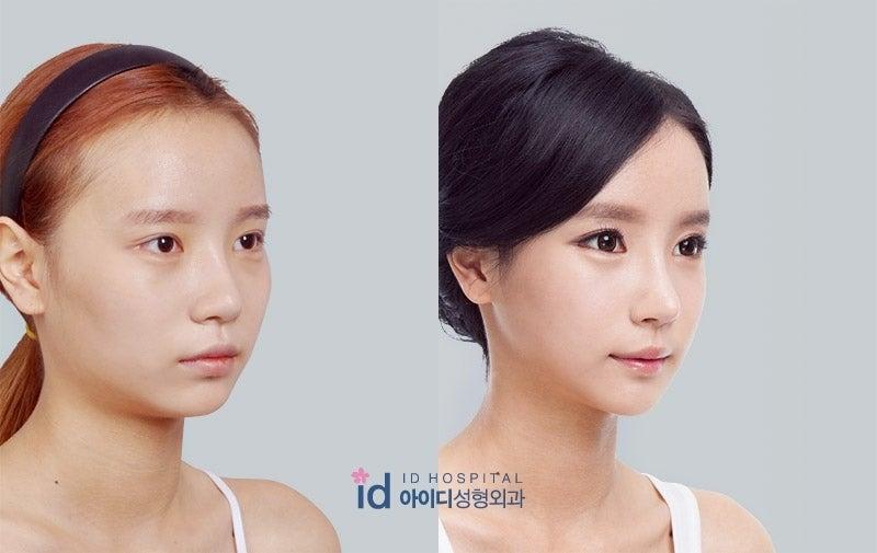 エラ削り、顎先、Vライン手術、鼻整形