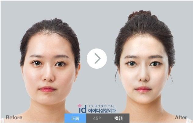 Vライン手術、エラ削り、頬骨縮小