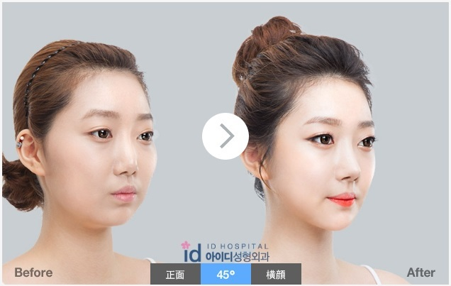 頬骨縮小、鼻再手術、輪郭、小顔