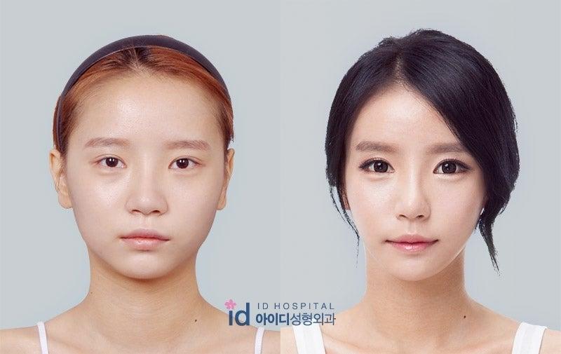 鼻再手術、輪郭、Vライン手術