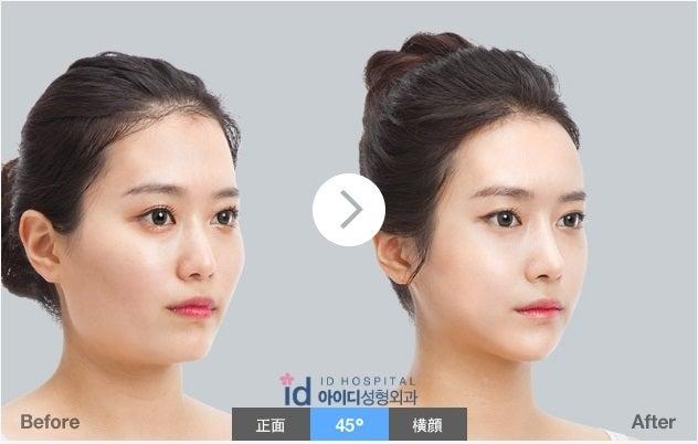 Vライン手術、ID美容外科、鼻整形