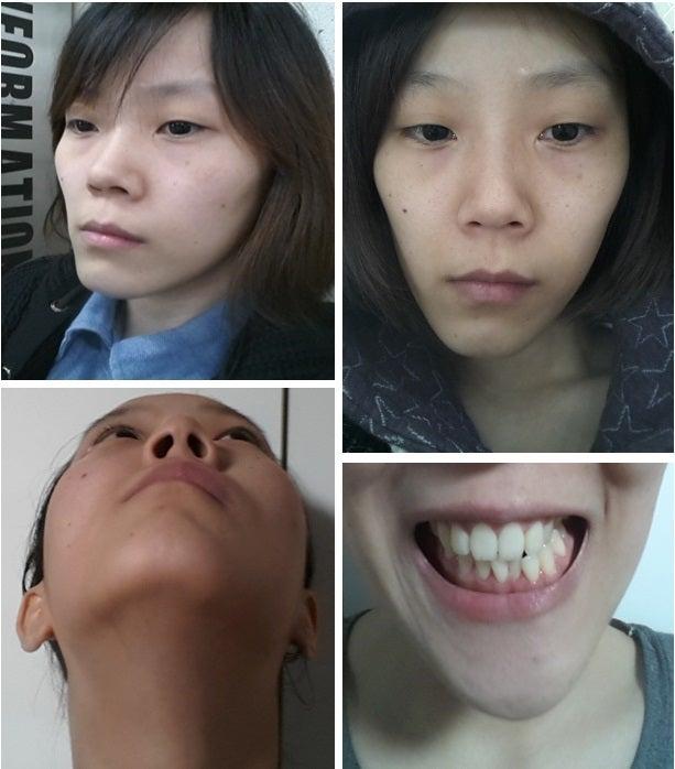 Eライン、両顎手術、非対称、ID美容外科