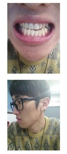 韓国美容整形、Eライン、両顎手術、小顔