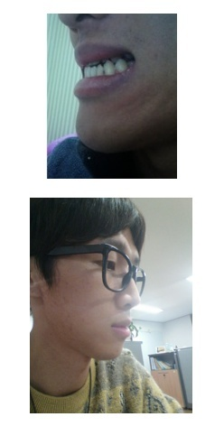 Eライン、両顎手術、しゃくれ顎、ID美容外科
