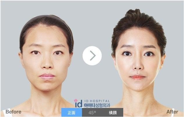 ID美容外科、弾力、たるみ、リフト
