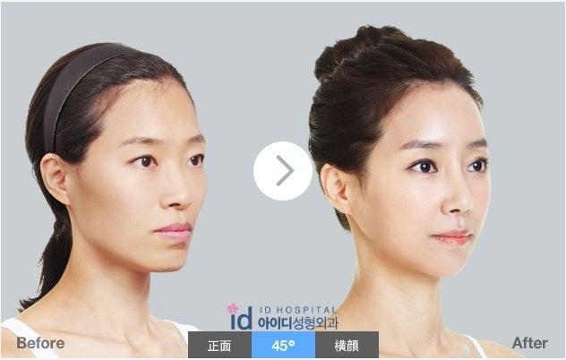 ID美容外科、たるみ、リフティング