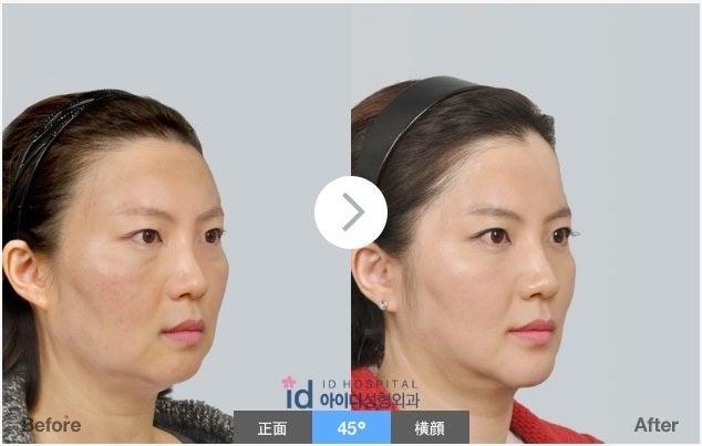 ID美容外科、韓国美容整形、小顔、たるみ