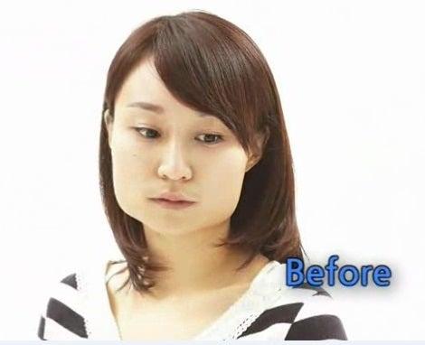 エラ削り、エラ張り、小顔、Vライン手術