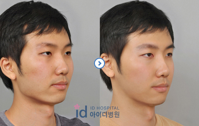 男性整形、韓国整形、輪郭、エラ削り、頬骨縮小