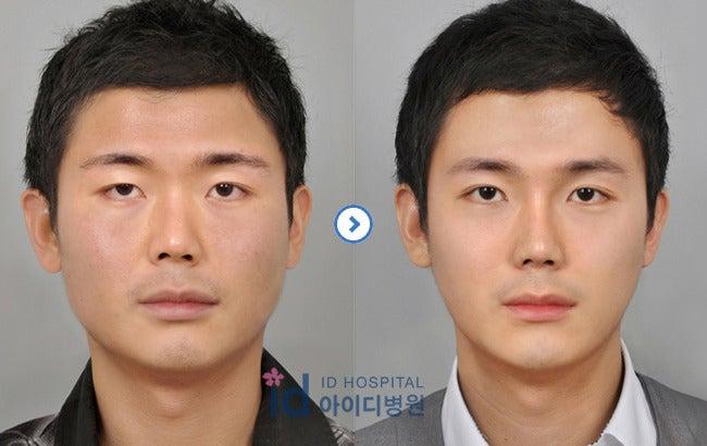 エラ削り、頬骨縮小、ID美容外科、男子整形