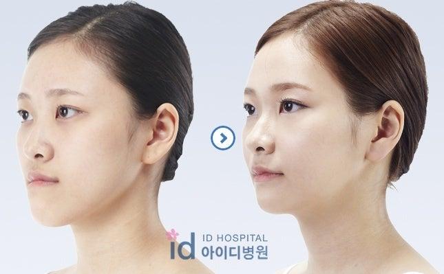 歯列矯正、Eライン、両顎手術、ID病院