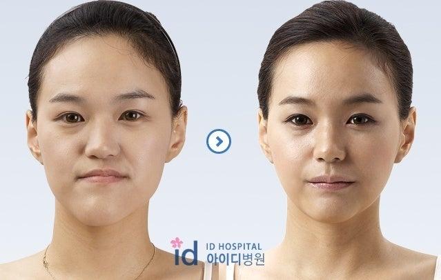 両顎手術、Eライン、小顔、非対称、不正咬合