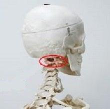 頚椎のズレ