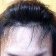 韓国 植毛 半年