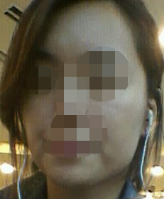エラ削り,エラ張り、輪郭、ID美容外科、Vライン手術