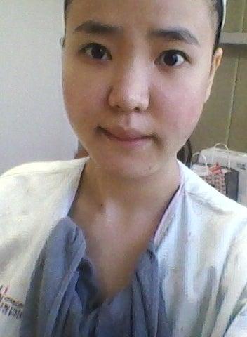 ID美容外科、韓国美容整形、両顎手術、非対称