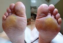 裏 黄色い の 足